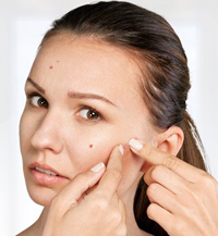 accutane help to stop acne